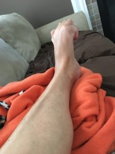 Tracy gives us a glimpse into life with CRPS with dystonia, ketamine, and SCS
