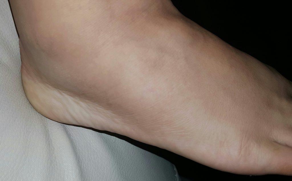Jeannette Pellot RSDSA foot 2